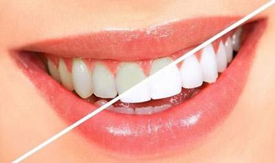 علائم فلوئوروزيس دنداني, جلوگیری از فلوروزیس