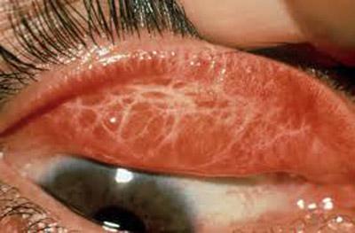 درمان تراخم, بیماری چشمی تراخم