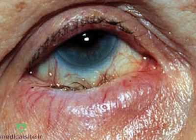 بیماری انتروپيون یا برگشتگی پلک به داخل